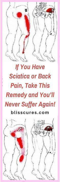 If You Have Sciatica or Back Pain, Take Best treatment for sciatica or back pain - This Remedy and You'll Never Suffer Again!