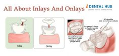 Inlays and Onlays are indirect dental restorations that reinforce an existing tooth that is too damaged to support a filling, but not damaged enough to require a crown.