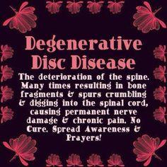 Degenerative disc disease - cause RA Fibromyalgia and Addisons Disease aren't enough to deal with! Chronic Fatigue Syndrome, Chronic Illness, Chronic Pain, Fibromyalgia Pain, Chronic Migraines, Degenerative Disc Disease, Spinal Stenosis, Ankylosing Spondylitis, My Demons
