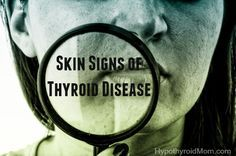 Skin Signs of Thyroid Disease HypothyroidMom.com #thyroid #hypothyroidism…