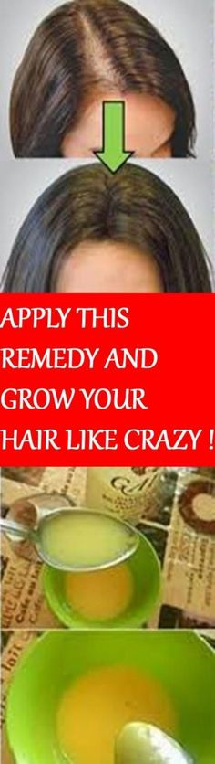 What you need do to avoid Female Hair Loss If you need treatment for hair loss in women, your first step is to talk to your doctor. If your hair loss has a Hair Remedies For Growth, Hair Loss Remedies, Male Pattern Baldness, Regrow Hair, Hair Regrowth, Hair Loss Treatment, Tips Belleza, Hair Health, Beauty Care