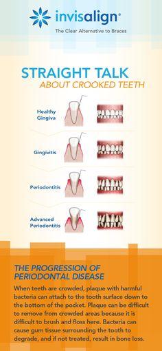 Got questions about teeth straightening? Dental Humor, Medical Humor, Dental Hygienist, Dental Assistant, Dental Health, Oral Health, Dental Care, Laser Dentistry, Dental Posters