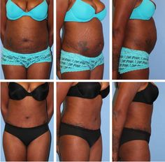 Best tummy tuck results!