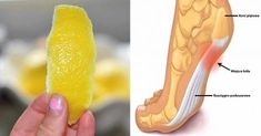 Lemon Peel - How To Minimize Chronic Pain And Inflammations With It? Find 2 Natural Lemon Peel Treatments to Minimize Chronic Pain Headache Remedies, Headache Relief, Pain Relief, Natural Cures, Natural Health, Natural Detox, Gout, Vitamins And Minerals, Health Remedies