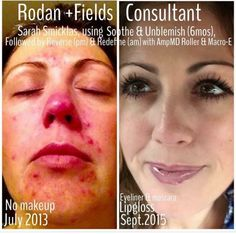 """When I talk about LIFE-CHANGING results, THIS is an exactly I'm referring to...  Sarah Marie just shared an update on her transformation over the past 2 years:  """"Many of you know I struggled with ocular rosacea, ulcers on my corneas, and was told by my eye specialists that I'd have to go on doxycycline indefinitely to control the rosacea. Thankfully my friend Lauren had joined R+F and I saw her Soothe before & after post at just the right time! I avoided meds & got the best s"""