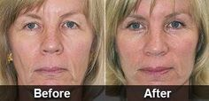 Anti-Wrinkle Serum That Removes The Signs Of Aging Gets Biggest Deal In Shark Tank History Lift Make, Anti Aging Medicine, Under Eye Bags, Finally Happy, Eye Wrinkle, Wrinkle Remover, Shark Tank, Anti Aging Cream, Beauty Routines