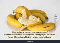 Jak szybko usunąć siniaki? - Masz siniaki, a chcesz, żeby szybko znikły? Obierz banana i skórkę wewnętrzną stroną przyłóż do siniaka. Już po 30 minutach zblednie i będzie mniej widoczny.