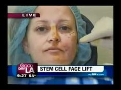 Dr Nathan Newman MD Stem Cell Face lift On Good Morning LA.flv Www.dreamfollower.jeunesseglobal.com