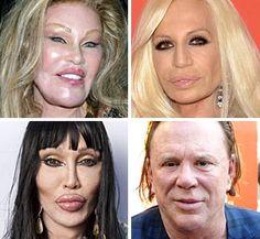 (Clockwise from top left) Jocelyn Wildenstein in 2006, Donatella Versace, Mickey Rourke & Pete Burns (© Nikki Nelson/WENN; Evan Agostini/AP; Frazer Harrison/Getty Images for Relativity Media; Tom Oldham/Rex Features) ~ PLASTIC SURGERY GONE BAD!