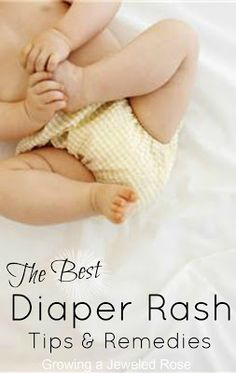 Get rid of diaper rash FAST with these tips and remedies from experienced moms