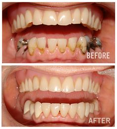 If you are unhappy with your smile and would like to take steps to improve it, we can help. To arrange a consultation, contact us at +91-9971237409 / +91-9310158505 today to speak with one of our dental professionals or you can visit our website http://www.dentaldelhidentist.com/.