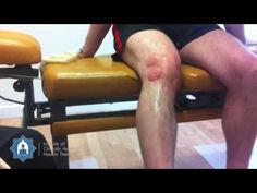 ▶ Wet Cupping / Hijama treatment after rugby knee injury - YouTube