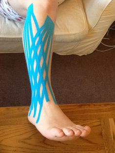 Kinesiotape As an Option to Alleviate Pain