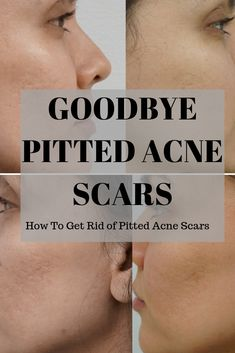 How To Get Rid Of Pitted Acne Scars! - Ready to say goodbye to those pitted acne scars? Learn how to get rid of them fa. Acne Pit Scars, Facial Scars, Facial Hair, Acne Holes, Acne Scar Removal Treatment, Natural Acne Treatment, Scar Remedies, Types Of Acne, Remove Acne