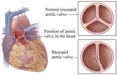ascending aortic aneurysm | Thoracic aortic aneurysm and bileaflet aortic valve (BAV)