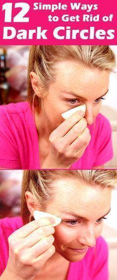 DIY Beauty Fashion: How To Get Rid Of Dark Circles Under Your Eyes Fast