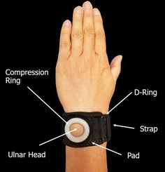 Ulnar-sided Wrist Pain - TFCC injury - Wrist Brace Don't Let Wrist Pain Stop You in Your Tracks THE BULLSEYE WRIST BAND RELIEVES ULNAR-SIDED WRIST PAIN THROUGH TARGETED COMPRESSION MADE POSSIBLE BY OUR UNIQUE SILICONE RING DESIGN.  Try the Bullseye Wrist Band for relief from:  TFCC Injuries Postoperative pain Sports injuries Ulnar-sided Wrist Pain Repetitive use trauma
