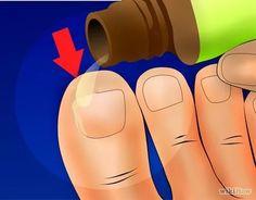 Behandlung eingewachsener Zehennagel