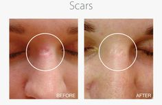 New article: Scar Reduction with derma roller: http://www.wellnessexpert.eu/scar-reduction-with-derma-roller