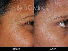 Skin City India - Wrinkle Botox