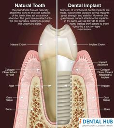 Ask about the difference between natural tooth and dental implant
