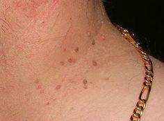 """""""Simplemente Mujer"""": 10 remedios naturales para eliminar las verrugas de tu cuerpo,Toma Nota .."""