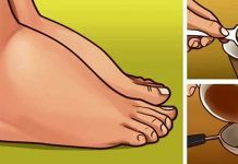 Watch This Video Ambrosial Home Remedies Swollen Feet Ideas. Inconceivable Home Remedies Swollen Feet Ideas. Foot Remedies, Arthritis Remedies, Sleep Remedies, Headache Remedies, Skin Care Remedies, Acne Remedies, Health Remedies, Holistic Remedies, Natural Remedies