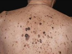 Skin Whitening Treatment Near Me Home Treatment, Honey Face Cleanser, Seborrheic Keratosis, Eczema Causes, Health, Food, Skin Whitening, Coastal Style, Natural Remedies