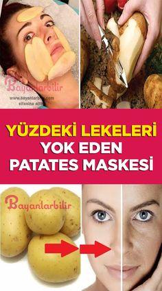 Potato mask that removes stains on face- Yüzdeki lekeleri yok eden patates maskesi Potato mask that removes spots, freckles, black spots on the face - Glossier Moisturizer, Anti Aging Moisturizer, Skincare Logo, Blemish Remover, Moisturize Hair, Face Skin Care, Neutrogena