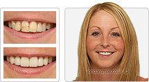 Cosmetic Dentistry London