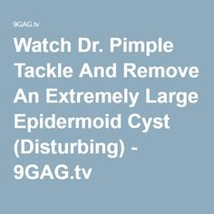 Watch Dr. Pimple Tackle And Remove An Extremely Large Epidermoid Cyst (Disturbing) - 9GAG.tv