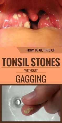 How To Get Rid Of Tonsil Stones Without Gagging