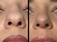 Broad nasal tip rhinoplasty history of the procedure problem rhinoplasty atlanta nose reshaping aesthetic facial surgery face neck plastic infographic aesthetic atlanta facial plastic reshaping rhinoplasty surgery Nose Plastic Surgery, Nose Surgery, Bulbous Nose, Nose Reshaping, Rhinoplasty Before And After, Rhinoplasty Surgery, Make Up Inspiration, Botox Injections, Operation