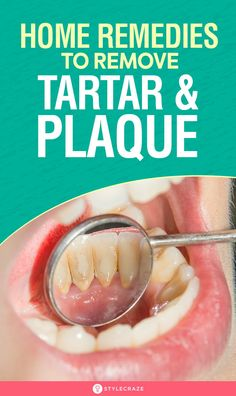 How To Remove Tartar And Plaque From Teeth: 11 Home Remedies - Mund und Zahngesundheit 2020 Teeth Health, Healthy Teeth, Oral Health, Dental Health, Dental Care, Smile Dental, Gum Health, Home Remedies, Natural Remedies