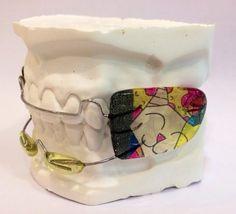 Aparato ortopédico