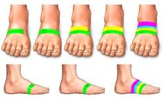 Taping your feet to avoid shin splints / good to know!. ☺ ✿