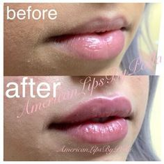 #lovethelips Polla Art Aesthetic RN, BSN - Instagram Profile - INK361 #LipFillersGoneWrong Botox Fillers, Dermal Fillers, Lip Fillers, Facial Procedure, Hair Health And Beauty, Lip Augmentation, Botox Injections, Big Lips, Cosmetic Procedures