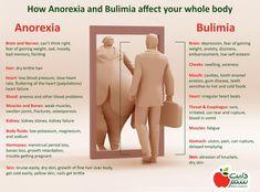 Anorexia / Bulimia