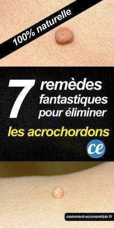 7 Remèdes Fantastiques Pour Éliminer les Acrochordons.