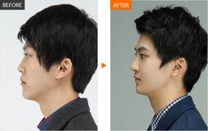 #men #menplasticsurgery #Banobagi #goodlooking #maleplasticsurgery #koreanman #koreanman #Plasticsurgery #Cosmeticsurgery #Beauty #Women #Gangnam #Seoul #Korean #Makeover #Life #Health #Faceshape #Faceline #Facecontour #Jaw #Jawline #fatgraft #skincare #nose #nosesurgery #rhinoplasty