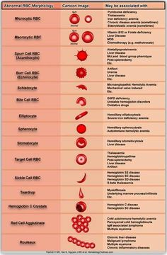 Abnormal red blood cell morphology