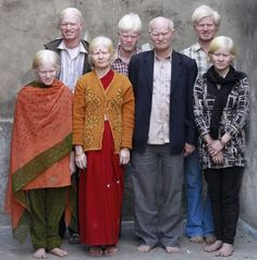 """Indian Albino Family - Ever wonder about the """"Things"""" we notice about people first ... What does it mean that the color of their skin is real news.  Think - what pattern is this?  Why don't we group really dark-green people together and take photos of their condition?  Why is this news?  Why is this a Pattern of Human Interest?  It is just not that simple - and that is the pattern."""
