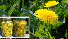 Cholesterol Cure - Even though considered a weed, dandelion root has a long history of therapeutic use. In fact, this extremely beneficial plant has the ability to treat allergies, lower cholesterol levels, stimulate the. - The One Food Cholesterol Cure Natural Cures, Natural Healing, The Cure, Vitiligo Treatment, Cancer Treatment, Reduce Cholesterol, Cholesterol Levels, Cancer Cure, Cancer Cells
