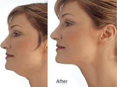 Here are the top 10 ways to get rid of a double chin. Sugar Free Gum To get rid of a double chin, it is essential to keep your facial muscles toned and give the muscles in your jaw line a workout. One of the best ways to do that is to chew sugarless… Double Chin Exercises, Neck Exercises, Facial Exercises, Stretches, Fitness Motivation, Sport Motivation, Health And Beauty Tips, Health Tips, Too Faced