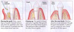 http://www.perioimplant.us/procedures/periodontics/bone-grafting/