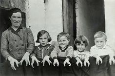Cleft Hands...