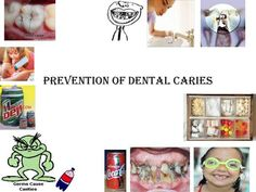 #DENTAL CARIES It is an irreversible progressive disease of multifarious in nature affecting the calcified tissues of the #teeth characterized by demilitarization of inorganic portion & destruction of organic portion of the #tooth.