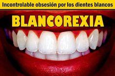 BLANCOREXIA: Incontrolable obsesión por los dientes blancos | Directorio Odontológico