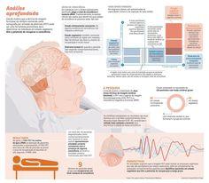 Teste para saber o nível de consciência de uma pessoa em coma.