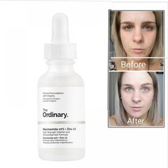 The Ordinary Niacinamide Balance Reduce Skin Blemishes Whitening Face Serum Skin Serum, Face Serum, Best Acne Products, Best Skincare Products, The Ordinary Peeling Solution, The Ordinary Skincare Routine, Whitening Face, Face Skin Care, Skin Care